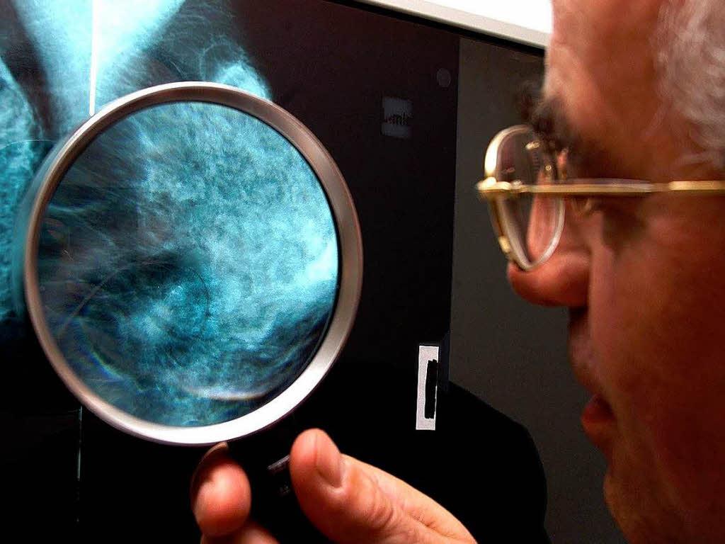 Kampf gegen Brustkrebs Stadium i