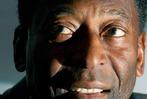 Fotos: Pelé feiert seinen 70. Geburtstag