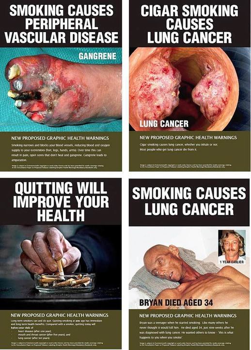 Solche Bilder prangen in Zukunft auf Zigarettenschachteln in Australien.  | Foto: dpa