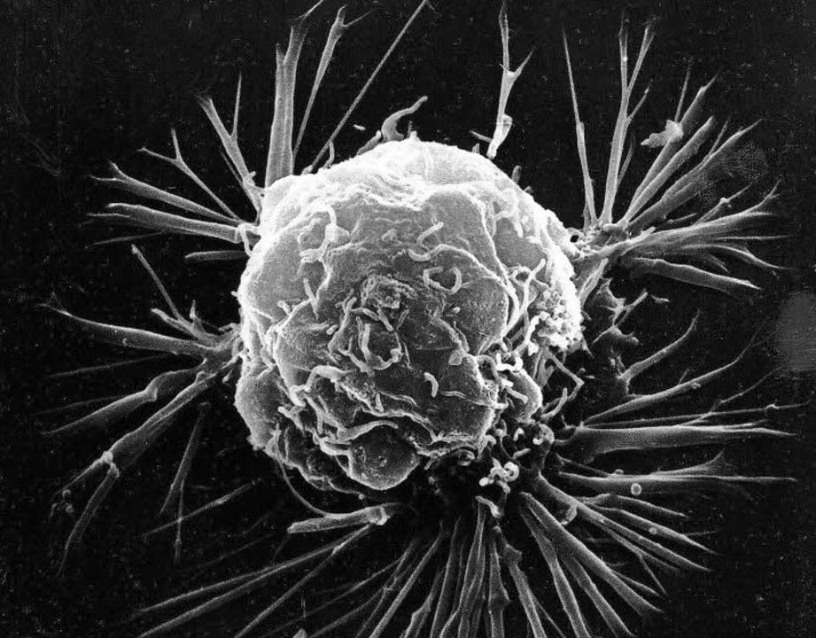 So sieht Brustkrebs unterm Mikroskop aus.  | Foto: ce: National Cancer Institute