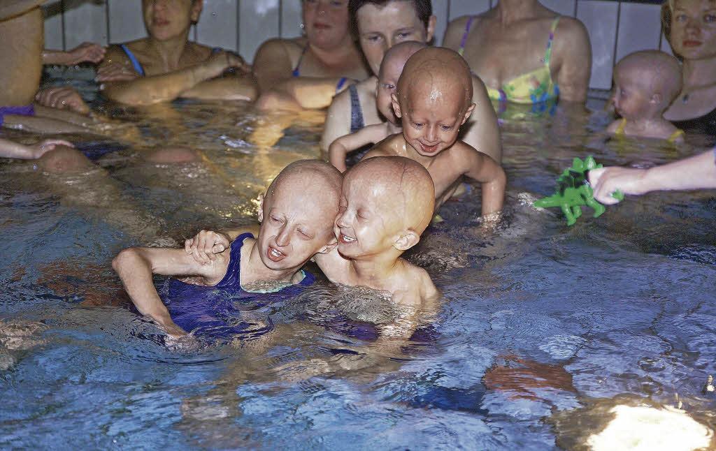 progerie therapie