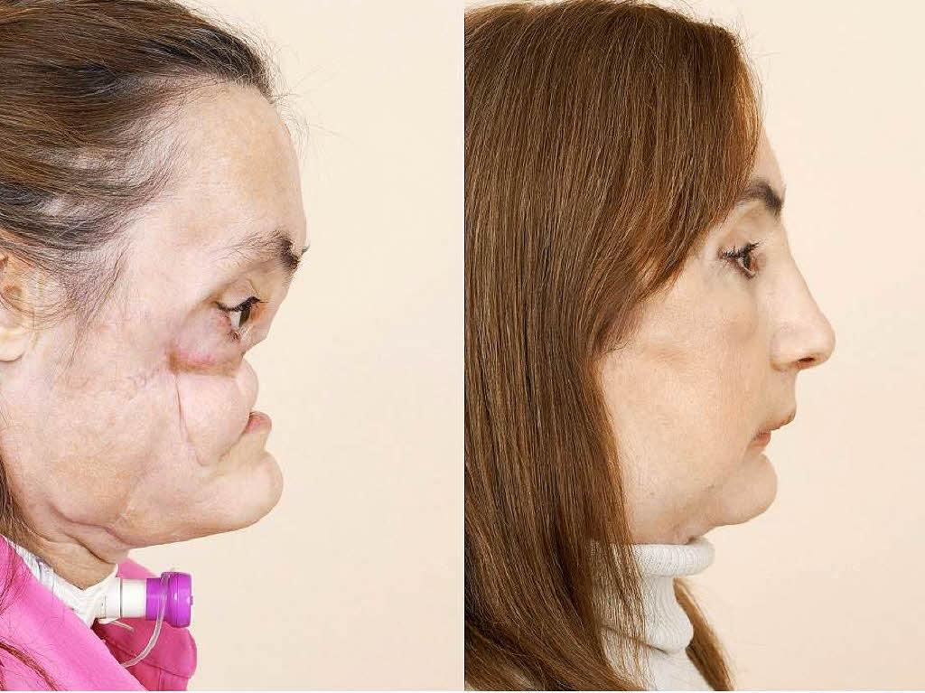 Gesichtsabwehr vor und nach