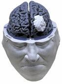 Hirnforschung: Wo ist der Platz der Seele?
