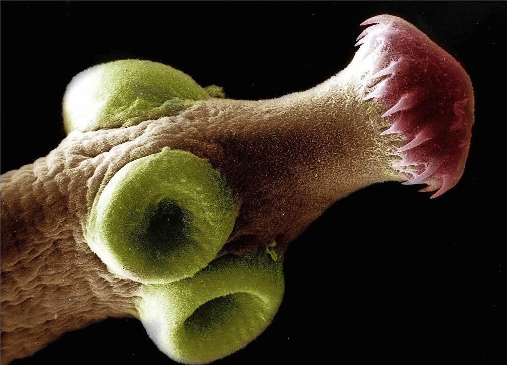 Der Stuhl nach den Tabletten von den Würmern