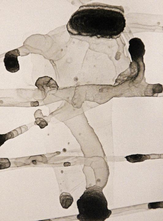 Kosmonaut oder Blutgefäße? Mittels  Tu...deren Bedeutungsgrenzen fließend ist.     Foto: Eri Sieberts