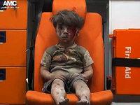 Geretteter Junge in Aleppo: Hinschauen ist Pflicht