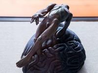 Die Geschichte einer Krankheit: Epilepsiemuseum in Kehl-Kork