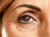 Eine künstliche Linse hilft Patienten mit Grauem Star