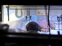 Schwer behindertes Baby - Gutachter belastet Klinikärzte