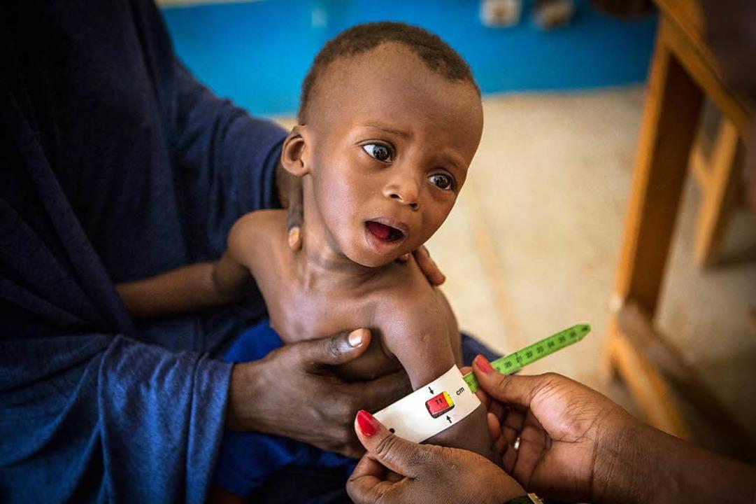 Unterernährtes Kind in Mali  | Foto: dpa