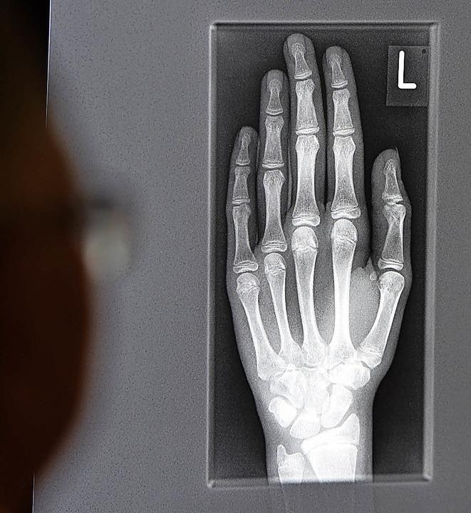 Röntgenbild von der Hand eines jungen ...n im Alter zwischen 16 und 19 Jahren    | Foto: DPA