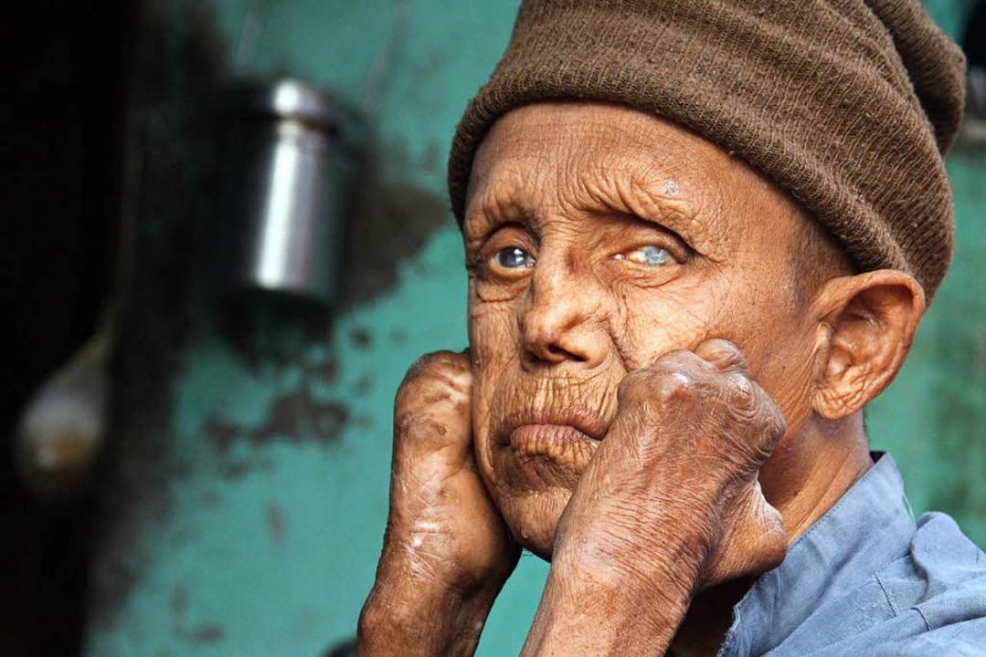 Ein an Lepra erkrankter Mann in Indien...Kolonie der nordindischen Stadt Jammu.  | Foto: dpa