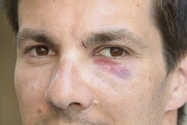 Martin Horn geht es nach der Attacke auf seiner Wahlparty besser