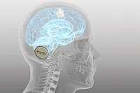 High-Tech-Medizintechnik aus Südbaden kann Epilepsie- und Parkinson-Patienten helfen