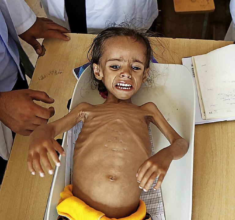 Hungersnot im Jemen: Ärzte behandeln ein unterernährtes Mädchen.   | Foto: DPA