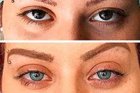 Straßburger Arzt ändert auf Wunsch Augenfarben