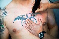 Tattoo-Entfernung nur noch beim Arzt