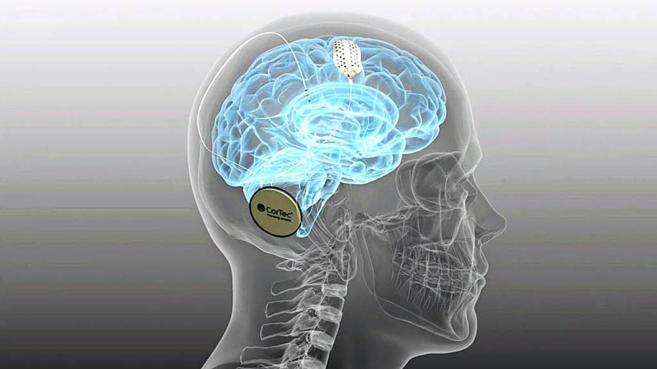 Das Cortec-Implantat arbeitet mit dem Gehirn zusammen.    | Foto: fotos: Saltzer-Deckert, Cortec