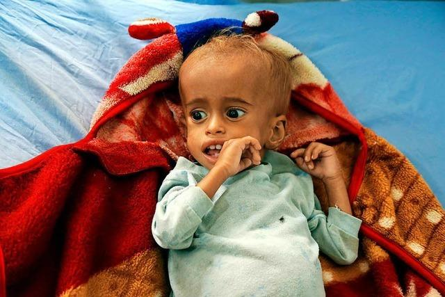 Im Jemen sind rund 400 000 Kinder unterernährt