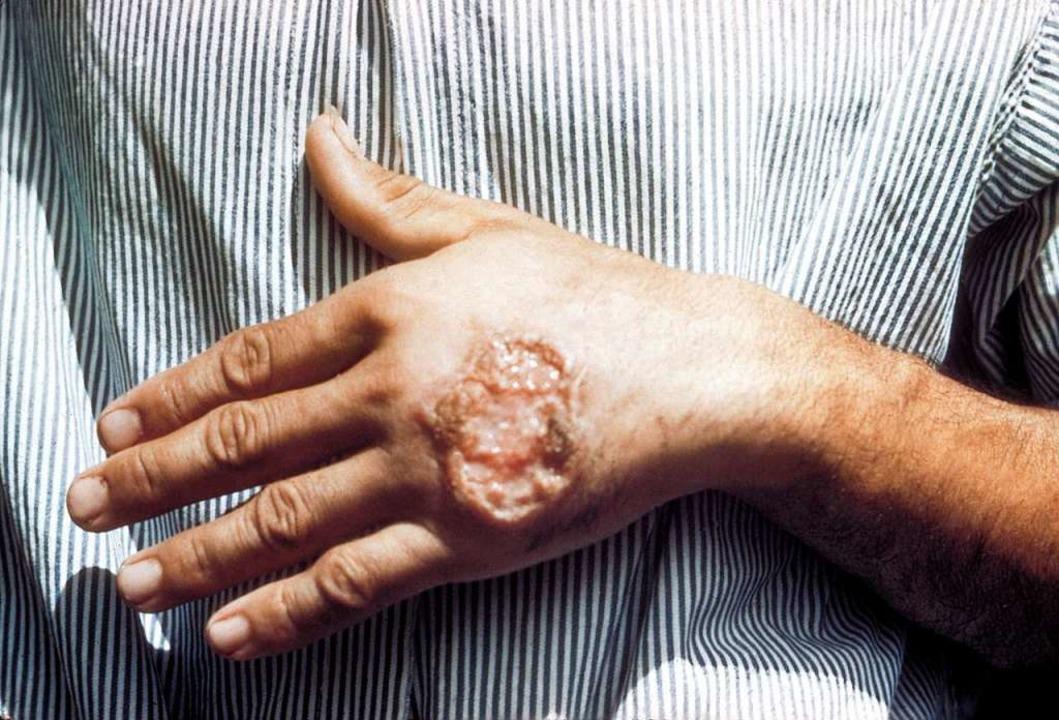 Aus einem infizierten Stich entstehen ... langwierige Wunden mit großen Narben.  | Foto: Dr. D. S. Martin ( Centers for Disease...n's Public Health Image Library (PHIL)