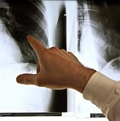Tabletten statt Spritzen bei rheumatoider Arthritis