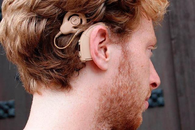 So funktioniert das Cochlear Implantat