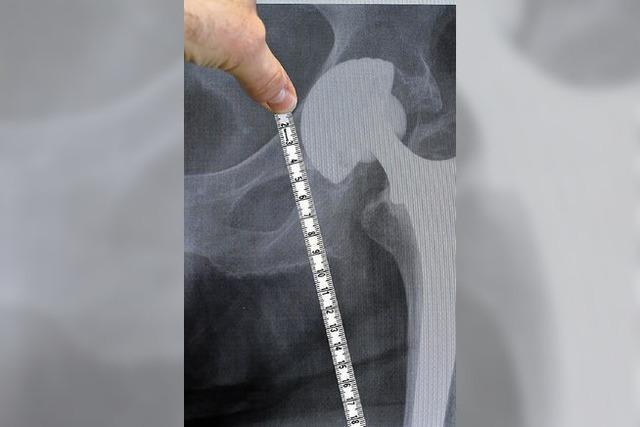 Prothesenskandal: Schlechte Kunde aus Übersee