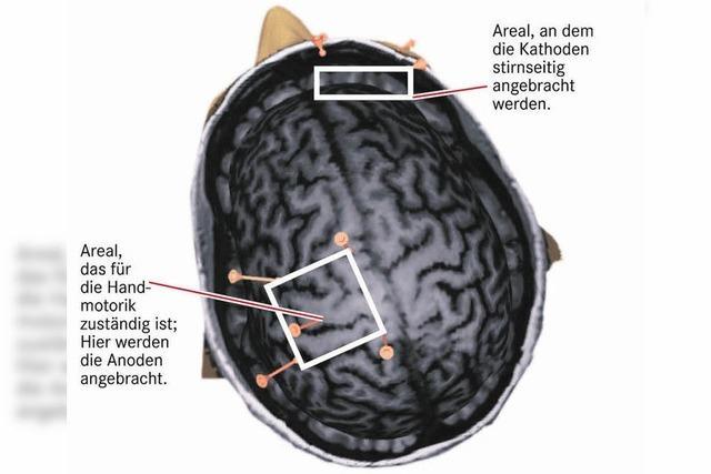 Leichte Stromschläge erhöhen das Denkvermögen