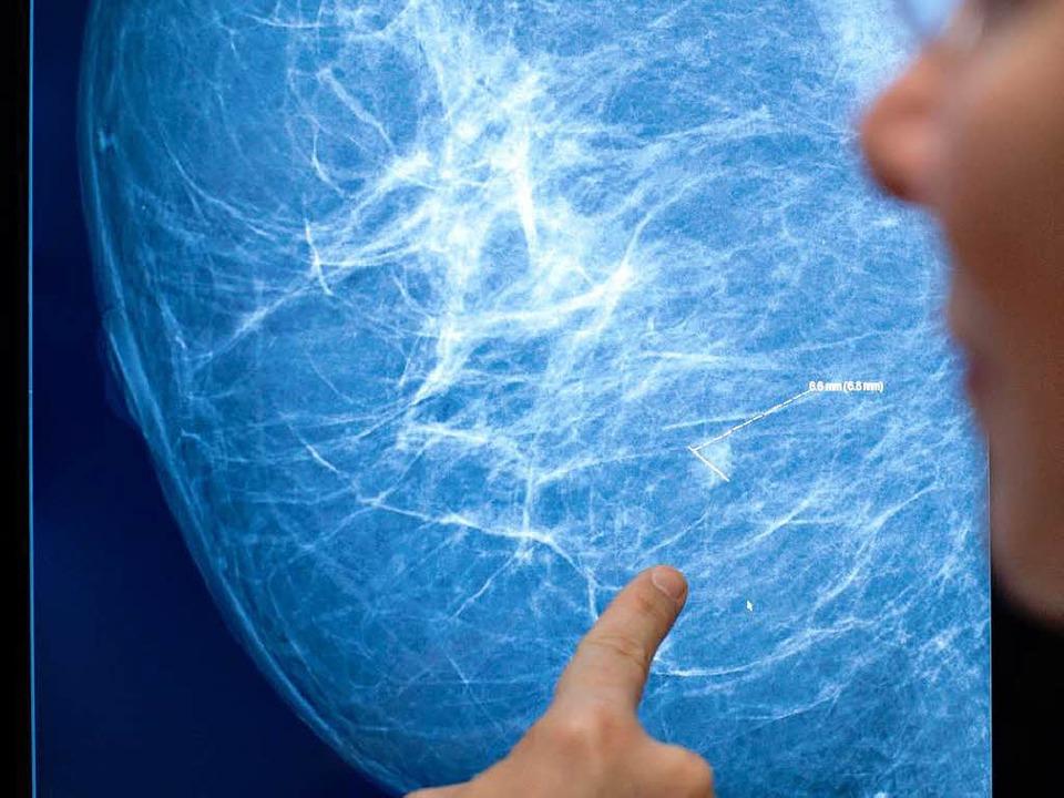 Nicht immer im Röntgenbild zu erkennen: Brustkrebs  | Foto: Verwendung weltweit, usage worldwide