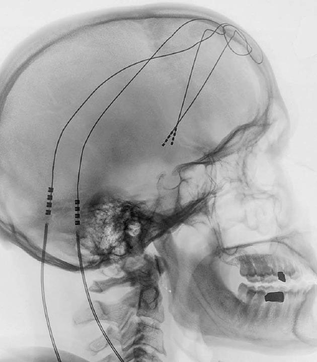 Der Schrittmacher im Röntgenbild  | Foto: uni Bonn