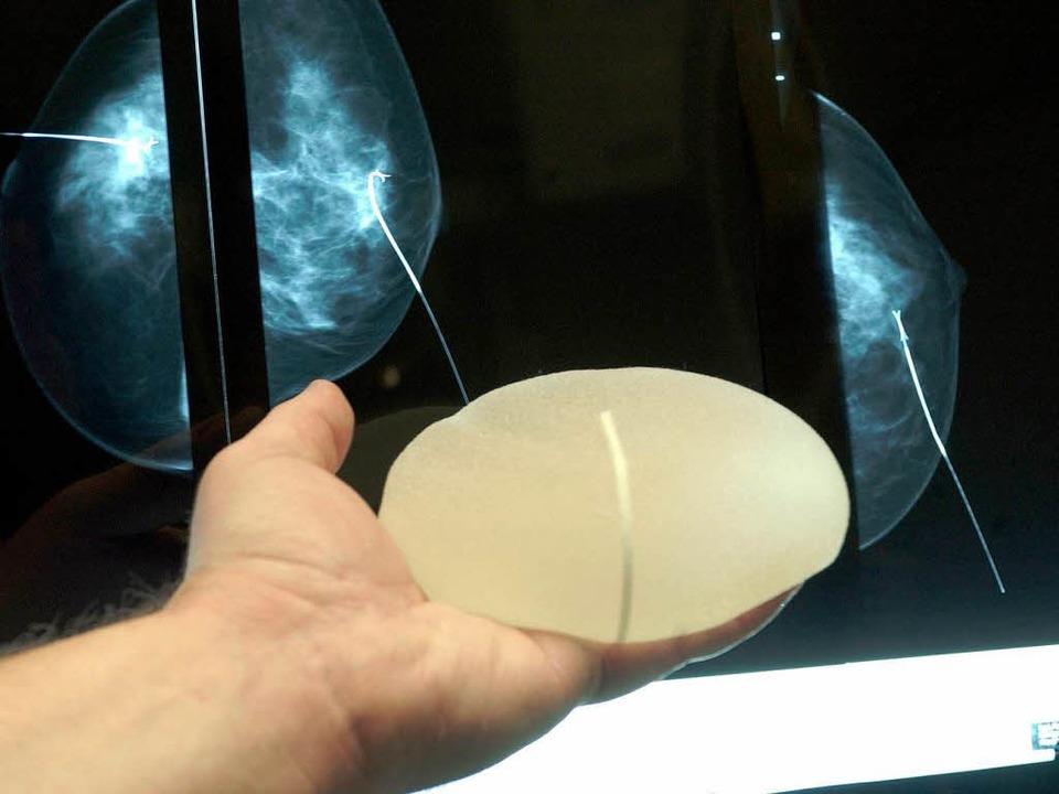 Können reißen: Brustimplantate des Her... Poly Implant Prothèse aus Frankreich.  | Foto: dpa