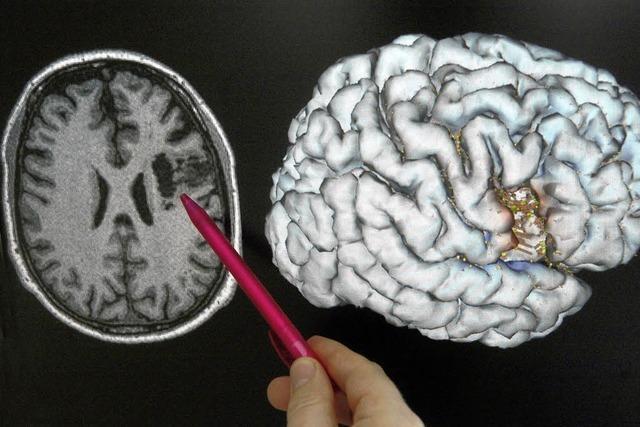 Hochaktuelles über das Gehirn