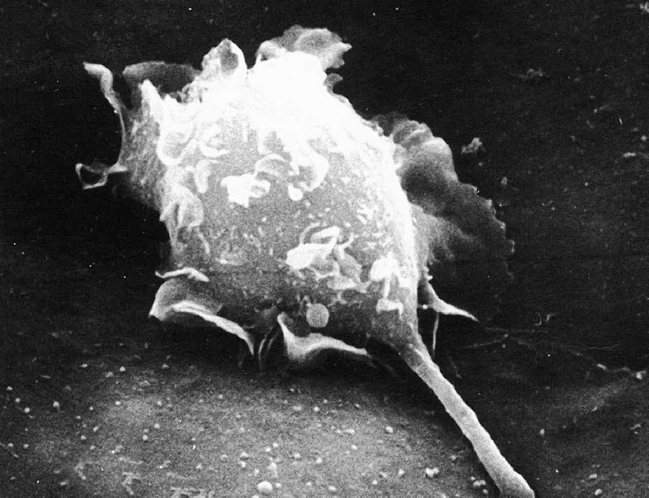 Krebszelle durchbohrt einen Gefäßwand bei einer Maus  | Foto: dpa