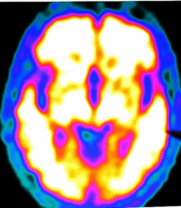 Gehirnbild  (MRT + PET) eines Alzheimerkranken  | Foto: dpa