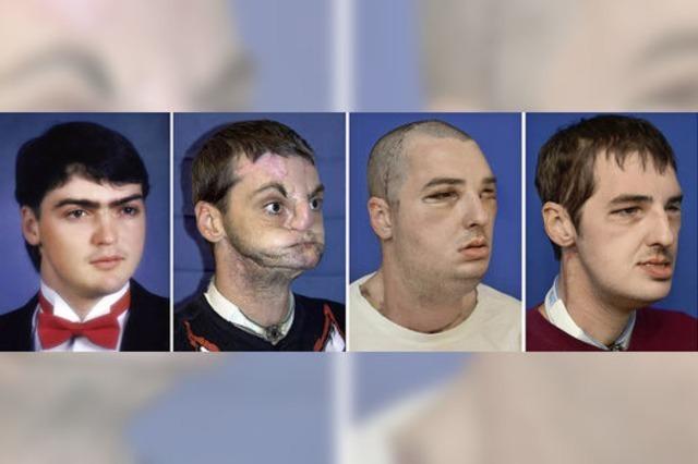 Mann bekommt nach Waffenunfall ein neues Gesicht
