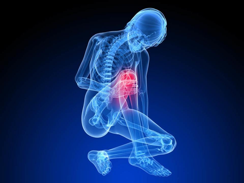 Wichtigster Einsatzort des Arthroskops: das schmerzende Knie   | Foto: imago/fotolia
