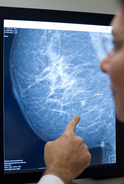 Das Brustkrebsrisiko bei einem Gendefekt kann sehr hoch sein.  | Foto: dpa