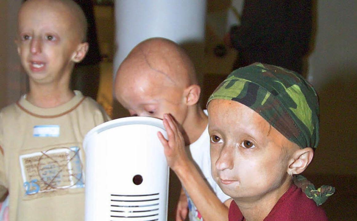 Schon nach wenigen Lebensmonaten sehen Progeriekinder uralt aus  | Foto: BZ