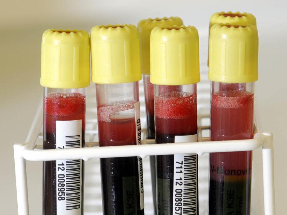 3500 Menschen gaben Blut für Noemi (Symbolbild).  | Foto: dapd
