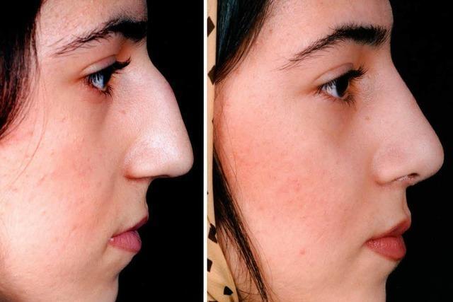 Boom von Schönheits-Operationen bei Iranerinnen