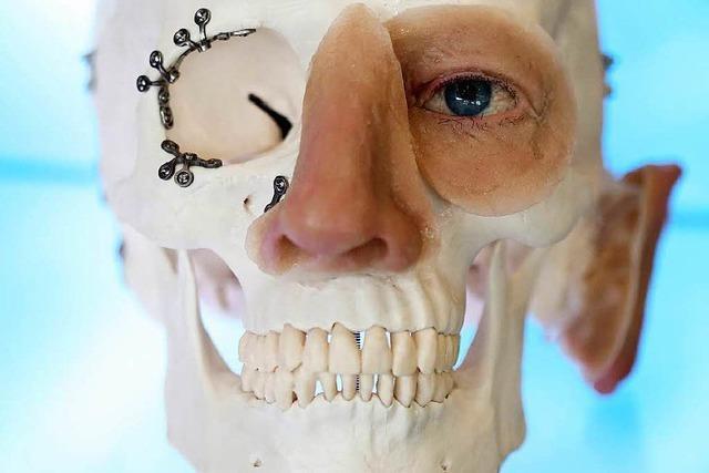 Immer mehr Zentren bieten Gesichtstransplantationen an