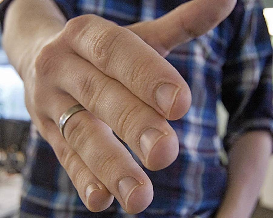 OB Dietz fordert dazu auf, Flüchtlingen die Hand zu reichen.   | Foto: dpa