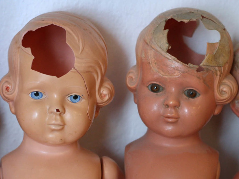 Die Uniklinik hat bei dem Dreijährigen...chen von Kindesmissbrauchfestgestellt.    Foto: dpa