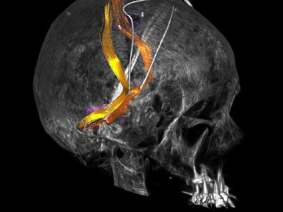 Röntgenbild des Kopfes mit Leitungsbahnen (bunt) und Hirnschrittmacher  | Foto: Uniklinik Freiburg