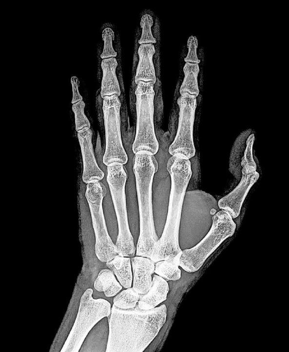 Röntgenbild der Hand  | Foto: fotolia
