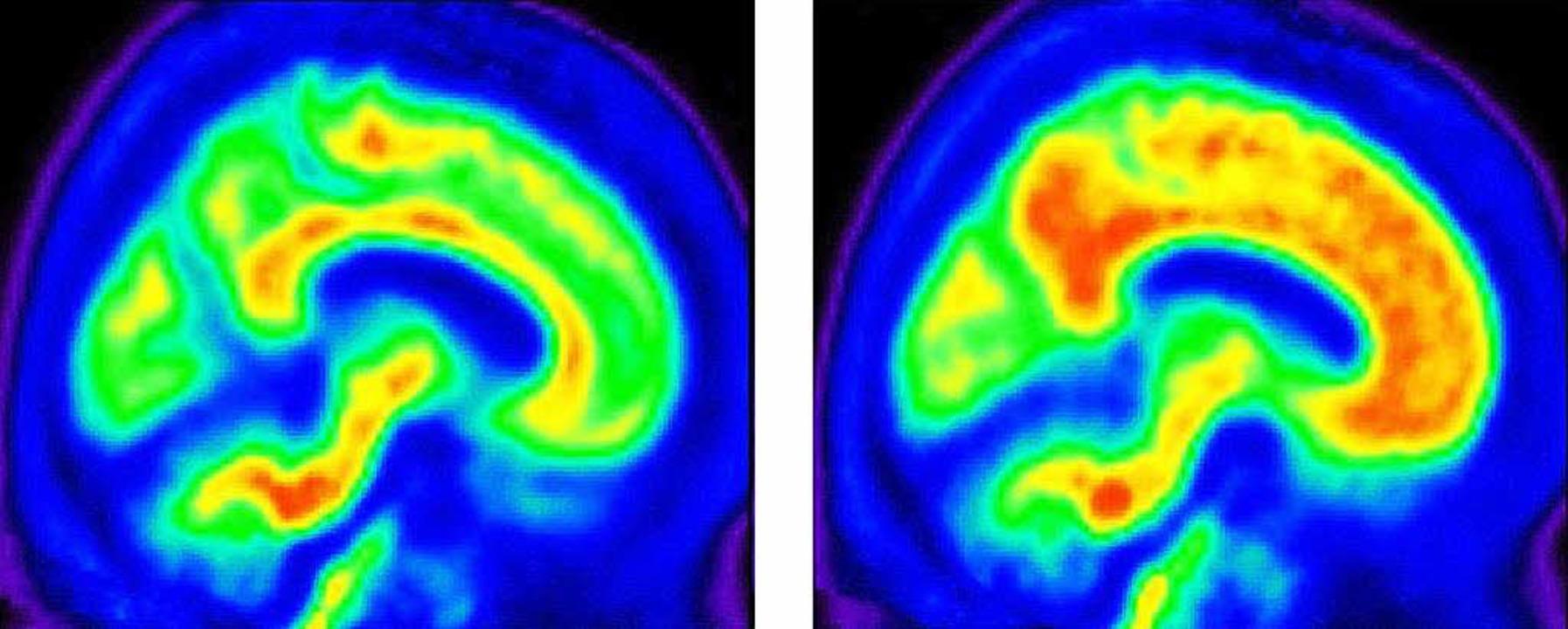 Diese Bilder eines Computertomographen...einhergehen (rötliche Bereiche unten).  | Foto: AFP