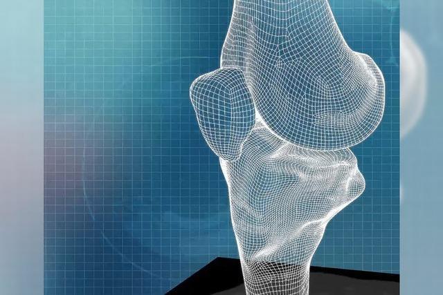Maßgeschneiderter Gelenkersatz am Knie Dank 3-D-Drucker
