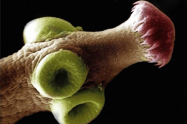 Können Bandwürmer Krebs übertragen?