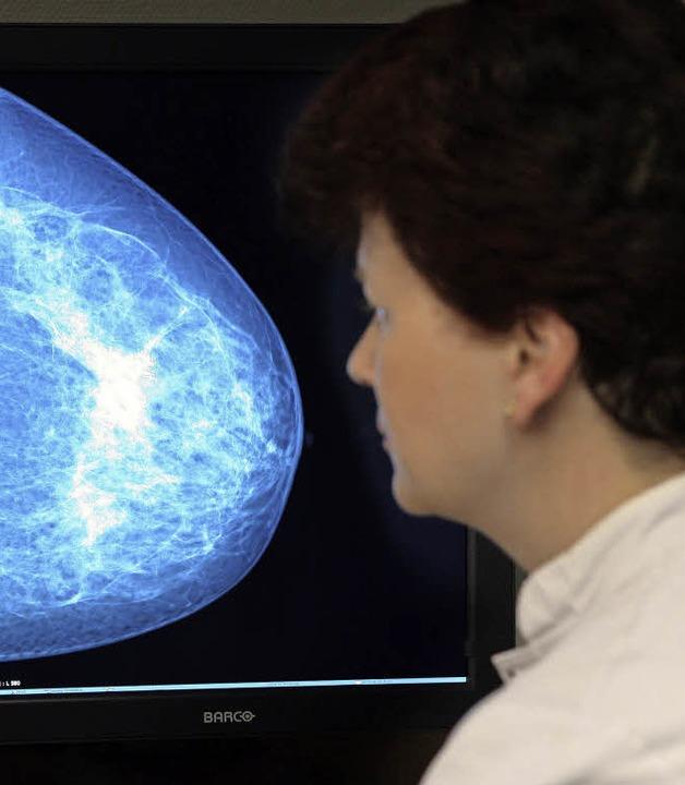 Mammografien gehören unter anderem zu ...engebieten der Radiologieassistenten.   | Foto: Bernd Wüsteneck (dpa)