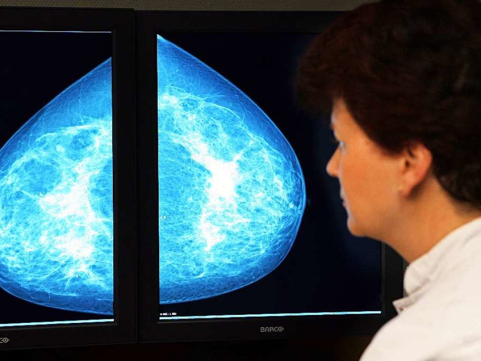 Mammografien gehören unter anderem zu ...bengebieten der Radiologieassistenten.    Foto: dpa Deutsche Presse-Agentur